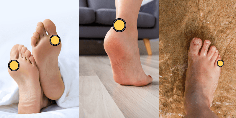 luoghi formazione delle vesciche ai piedi